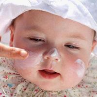 Chữa trị bệnh chàm sữa cho bé bằng dầu dừa