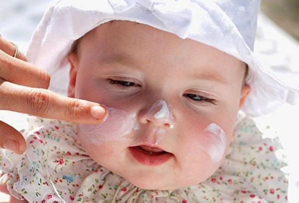 Bệnh chàm sữa trẻ em