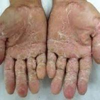Bệnh vẩy nến và bệnh viêm da mà bạn nên biết
