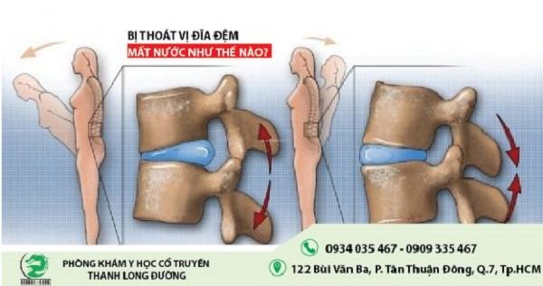 benh-thoat-vi-dia-dem-mat-nuoc